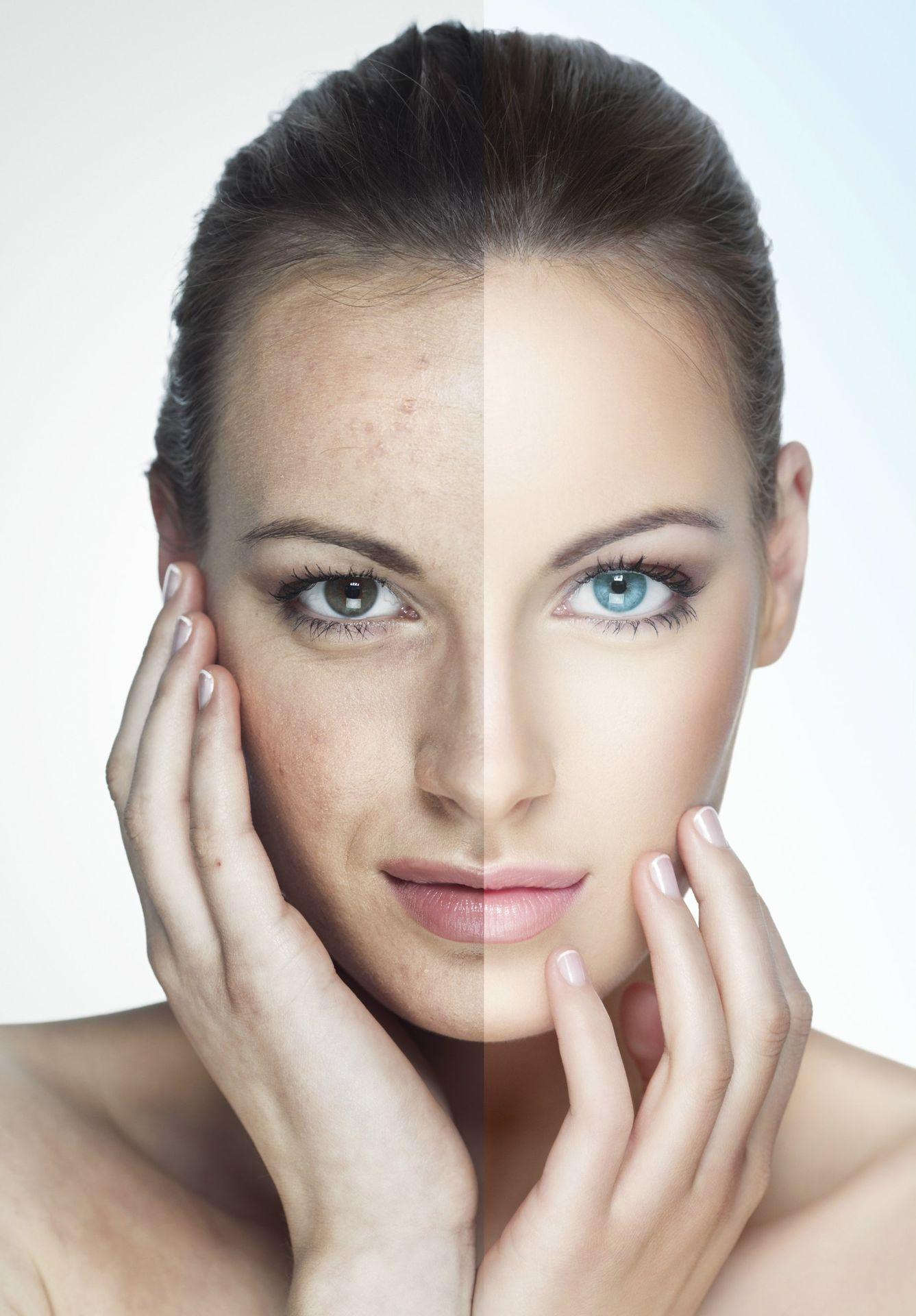 skin-care-istock_000019210111large-care