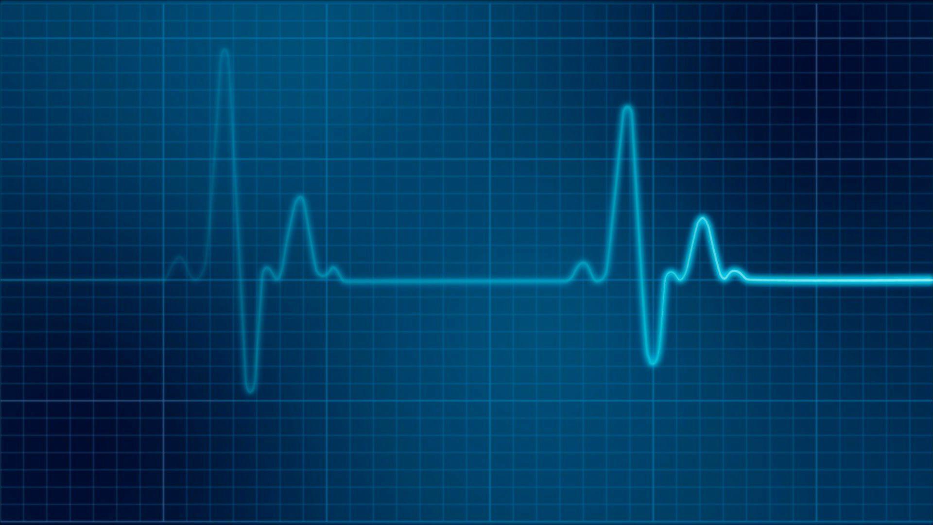ekg-monitor-medical