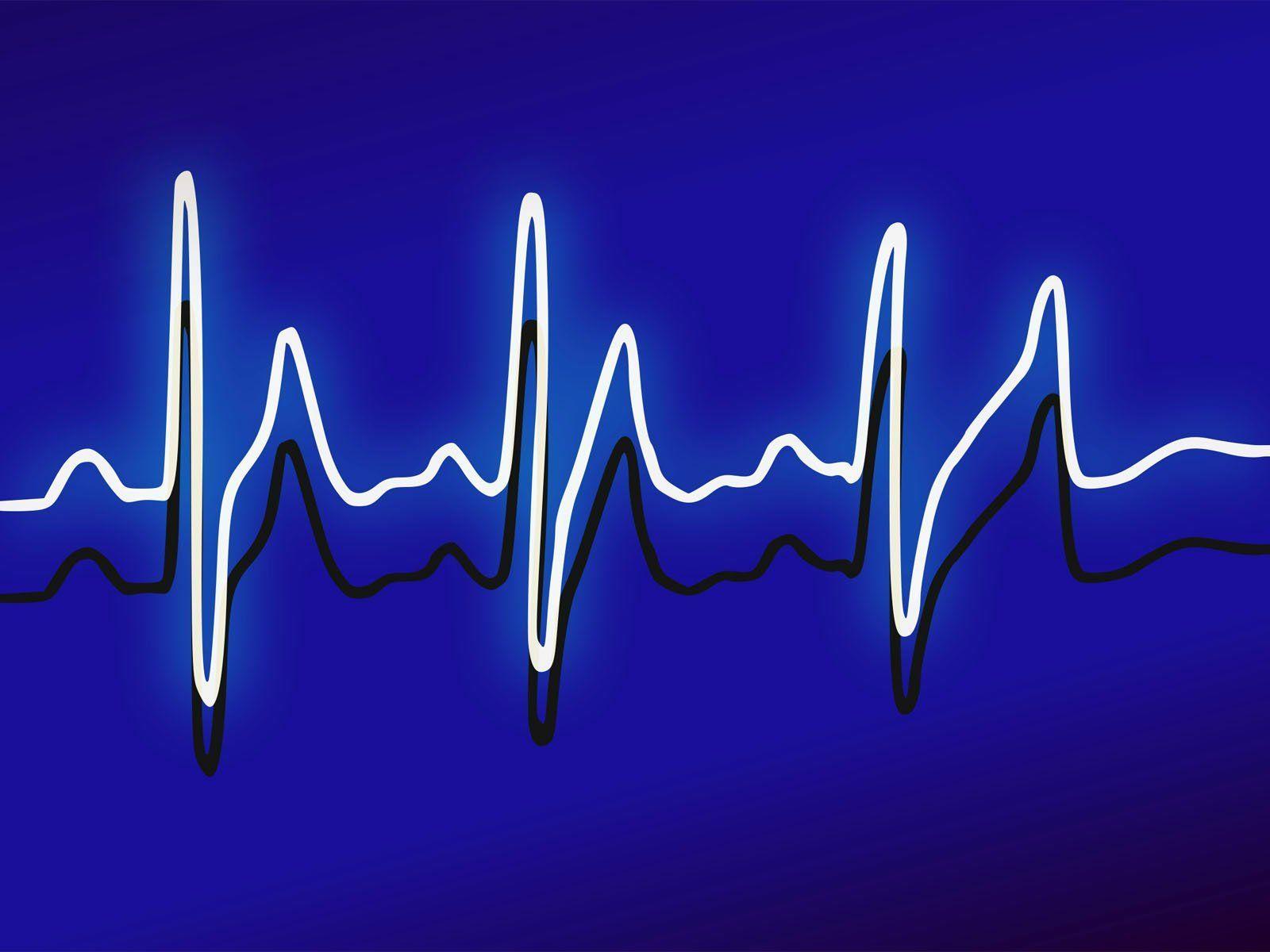 medical-pulse-ppt-background-templates-medical